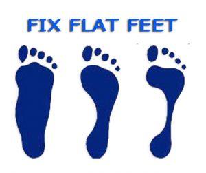 fix flat feet