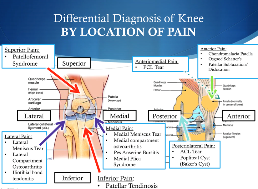 Just to name a few of the causes of chronic knee pain